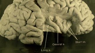 New Photos of Einsteins Brain